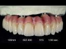 Digital Dental Photography 9 of 9 Fotografia Extraorale Tip and Tricks