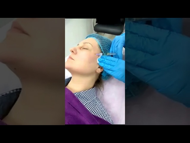 Welle stretch Ревитализация кожи с эффектом лифтинга!