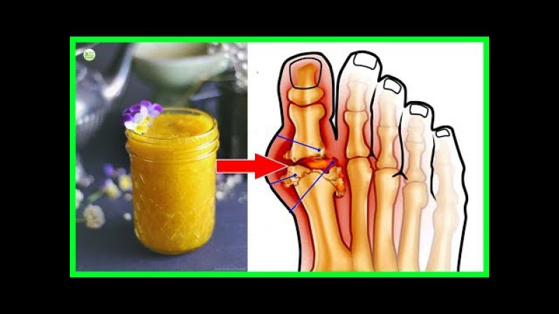 Say Goodbye To Gout Forever With This Powerful Natural Treatment - Home Remedies For Gout