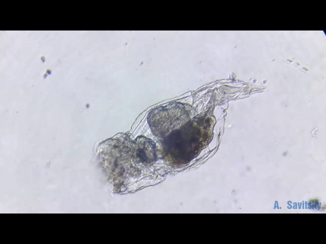 Коловратка Epiphanes senta . 250х / Rotifera Epiphanes senta . 250х.