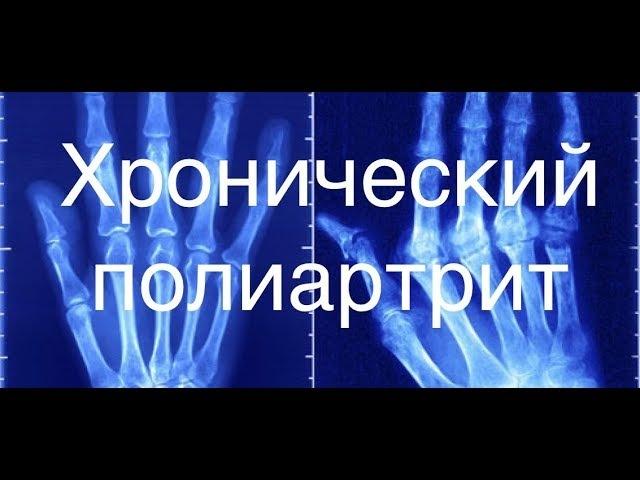 Новітні тактики лікування Ревматоідного Артриту (РА)