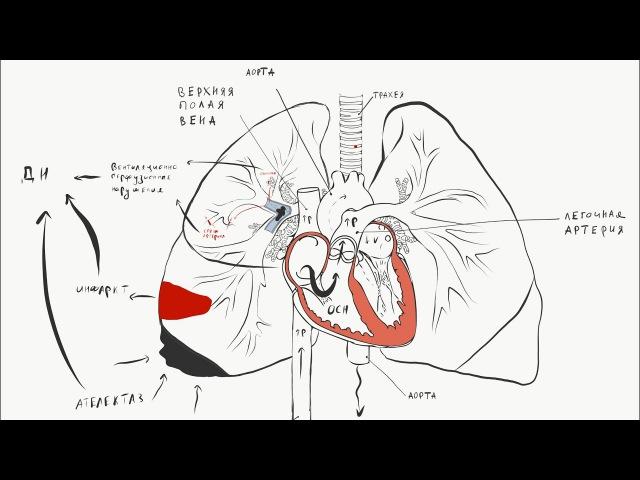 Тромбоэмболия легочной артерии ТЭЛА