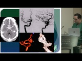 Decision Making in Clipping vs Coiling - Aaron Dumount, M.D.