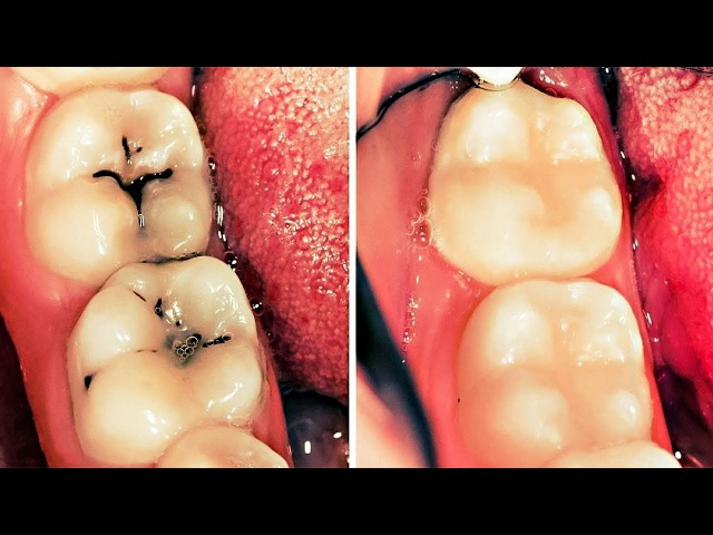 27 SIMPLE WAYS TO NATURALLY REVERSE CAVITIES AND HEAL TOOTH DECAY
