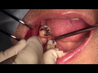 Straumann wide neck implant placement with guided surgery system in #46