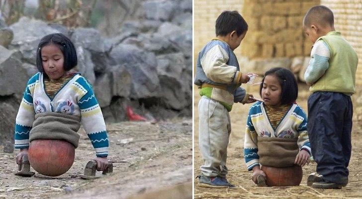 Баскетбольный мяч служил протезом ног для маленькой девочки