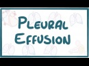 pleural effusion causes diagnosis and treatment - 570×325