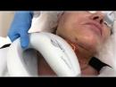 Фототерапия гематом после пластической операции