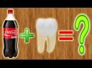 Что делает Coca-Cola с зубами