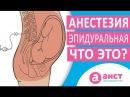 Как делается эпидуральная анестезия при родах