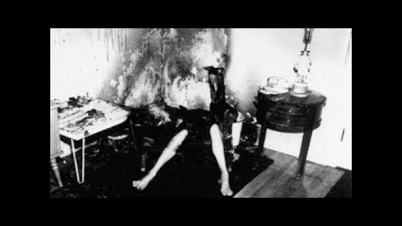 Самовозгорание человека или пирокинез