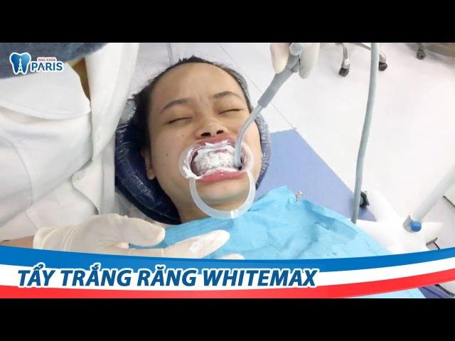 Cận cảnh Tẩy trắng răng tại Nha khoa Paris