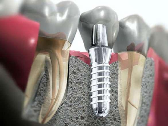 Виды дентальной имплантации