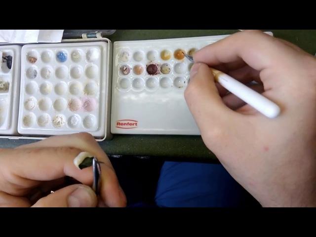 Покраска керамической коронки керамическая масса EMOTIONS.