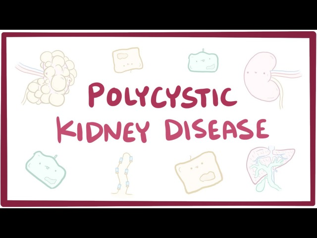 Polycystic kidney disease - causes, symptoms, diagnosis, treatment, pathology