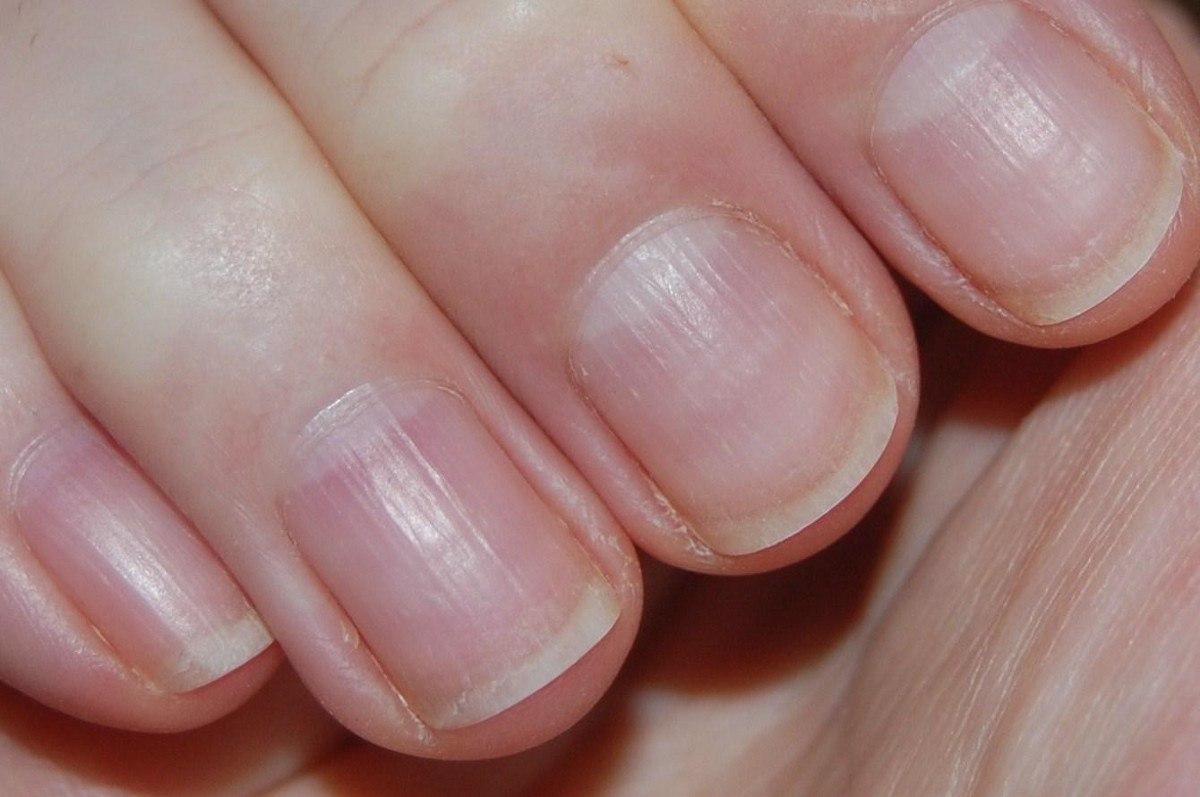 Почему синие ногти?