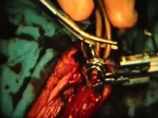 Методы остановки кровотечения