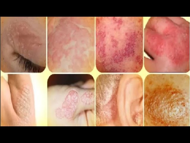 PSORIASIS Symptoms, Causes Treats and Best Vitamins