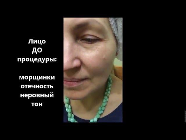 Маска Zeitgard Serox Пошаговая инструкция