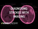 Diagnosing strokes with imaging CT, MRI, and Angiography NCLEX-RN Khan Academy