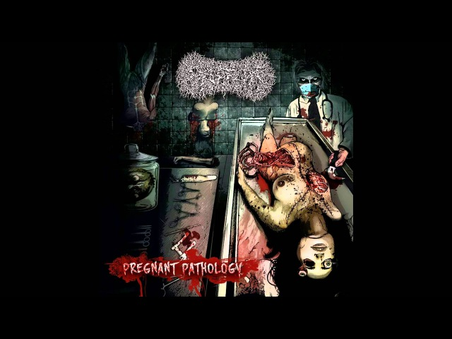 Paediatrician - Pregnant Pathology FULL ALBUM (2016 - Goregrind / Brutal Death Metal)