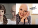 My Alopecia Film | Head First Trailer | Hairy Escape