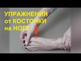 Упражнения от косточки на ноге, гимнастика для лечения большого пальца ноги.