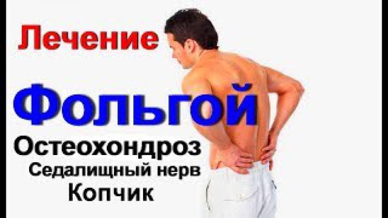 Фольга лечит невероятно. Боль в спине. Остеохондроз седалищный нерв сколиоз копчик. Лечение фольгой