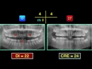Chris Top 11 Cases - 4. Class II, Excessive Overjet and Deep Bite. Ортодонтия.