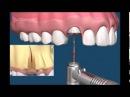 Хирургическая стоматология Как удалять зубы Примеры удаления зубов Сложное удаление