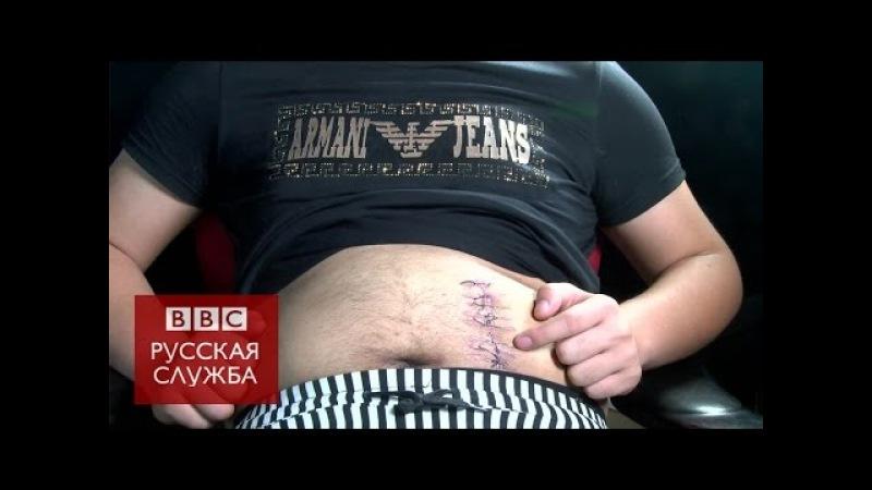 Торговля органами в Китае: почка за $7 тыс. - BBC Russian