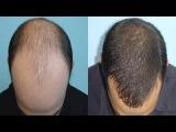 Миноксидил результаты | Миноксидил для волос отзывы | Minoxidil для волос