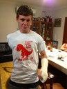 Однорукий парень сломал и вторую руку, а его друг подарил ему такую футболку
