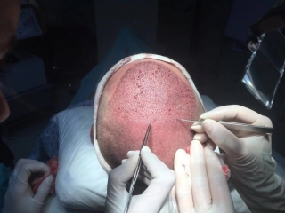 Пересадка волос, метод IMPLANTER PEN FUE, доктор Айхан Чолак
