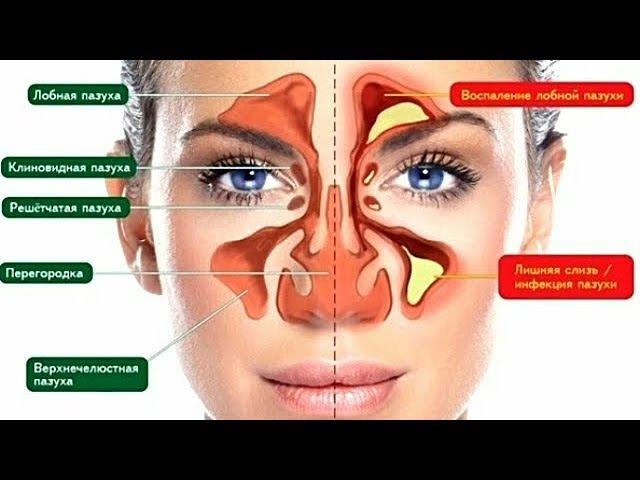 Избавься от Инфекции Носовых Пазух Всего за 5 минут Знать бы этот метод раньше…