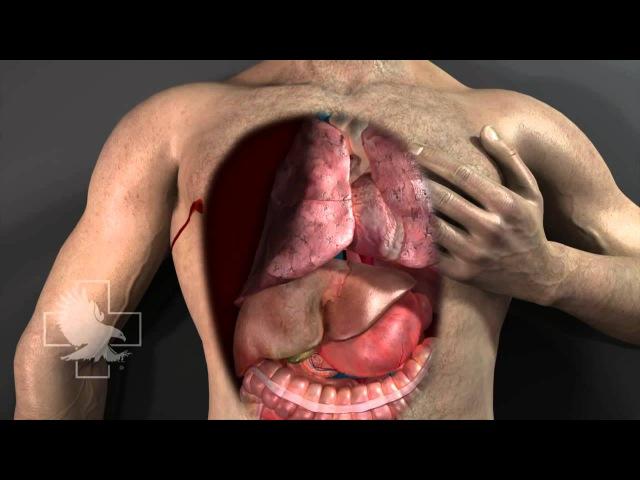 Пневмоторакс и применение т.н. окклюзионного пластыря