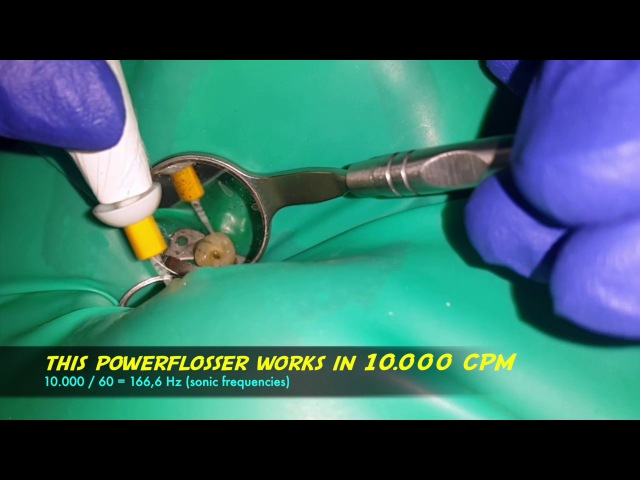Using power flosser (waterpik) with endoactivator tip to agitate endodontic irrigating solution