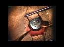 Хирургическое удаление катаракты - факоэмульсификация - у собаки породы французский бульдог