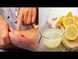 3 Remedios Con Limon Para Combatir El Acido Urico