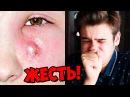 Мерзость! ВЫДАВЛИВАЕТ ПРЫЩИ АКНЕ НА ЛИЦЕ !! Выдавливают прыщи на лице !! Blackhead extraction on ear