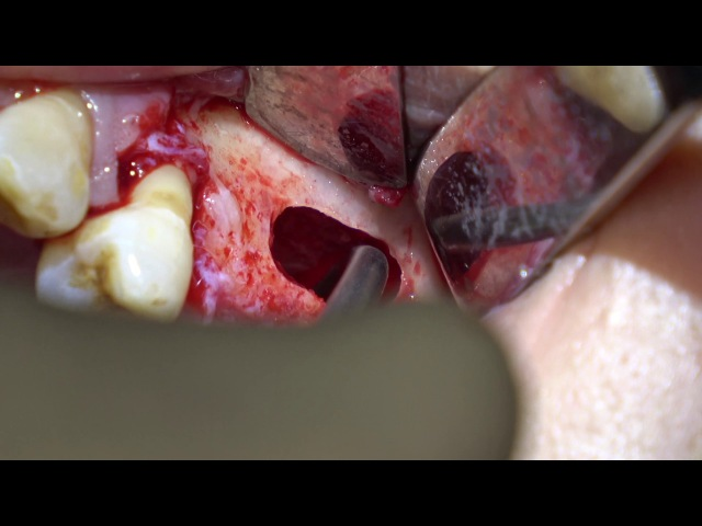 4K Sinus Augmentation with Xenograft Lateral Window with Piezoelectric Surgery