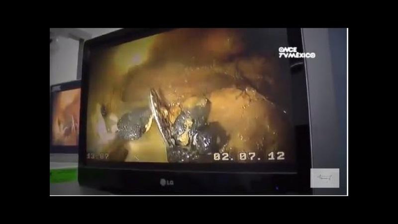 Эндоскопия у утки с кишечной непроходимостью / Endoscopia en pato - Obstrucción en el tracto digestivo