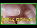 This Is Why Your Nails Keep Splitting Brittle Nails Causes Best Home Remedies