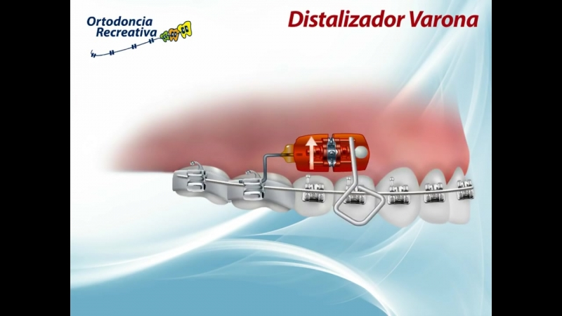 DISTALIZER ORTHODONTICS - DISTALIZADOR VARONA. Ортодонтия.