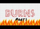 A Nursing Student's Guide to Burns Part 1