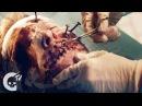 Surgery Gory Short Horror Film Crypt TV
