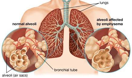 Признаки и симптомы респираторных инфекций
