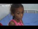 Les enfants du Yémen gravement affamés sont maintenant menacés par la pire épidémie de choléra au monde