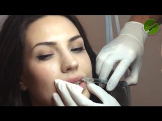 Увеличение губ для Джоли. Lip Augmentation for JOLIE (Эдгар Каминский)