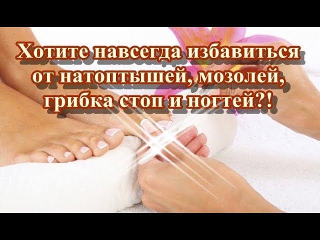 Хотите навсегда избавиться от натоптышей мозолей грибка стоп и ногтей